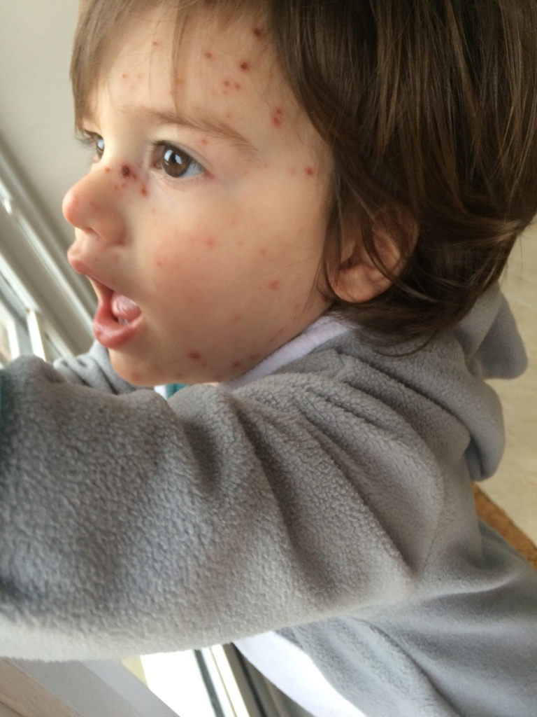 leo with chickenpox